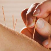 dry-needling-services